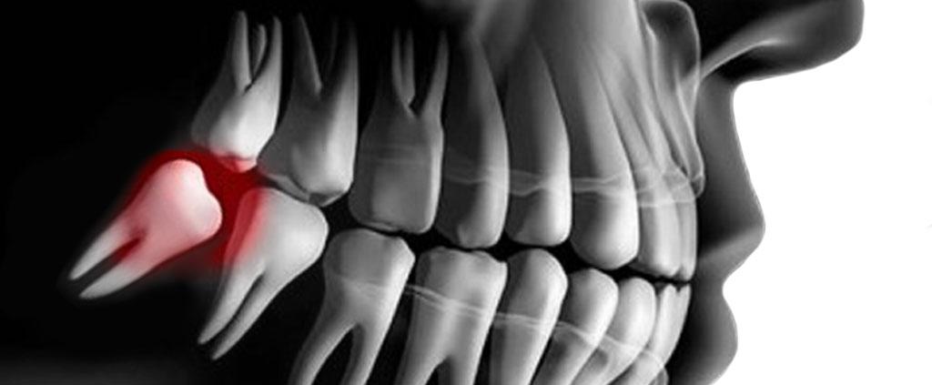 Perché il dente del giudizio provoca dolore