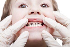 Macchie nere sui denti bambini