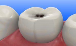 Puntini neri nei denti