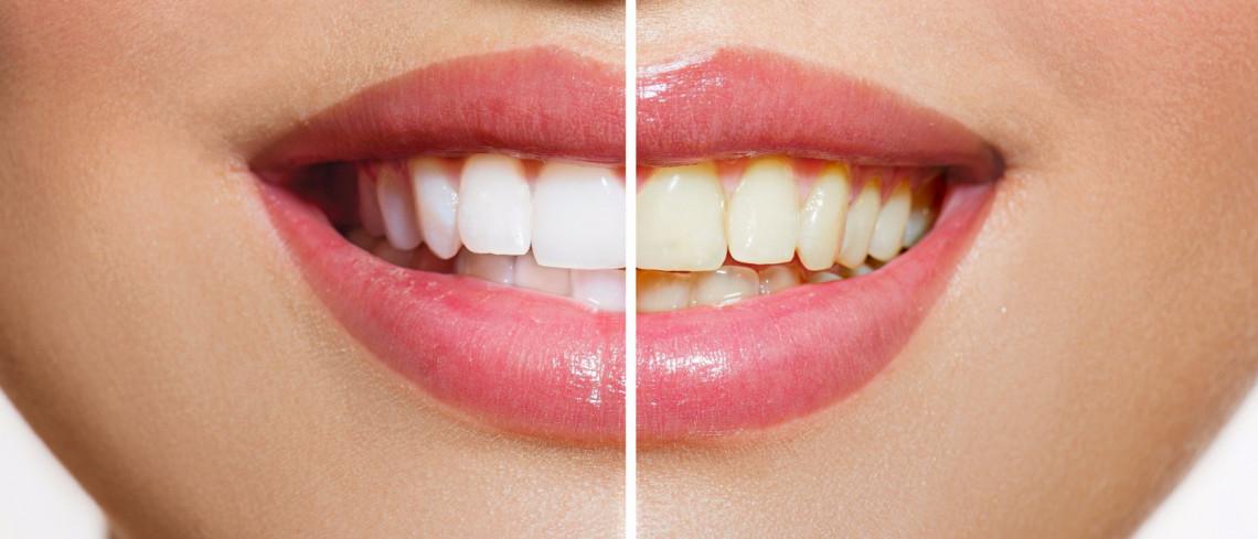 Cause e rimedi per i denti gialli
