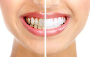 Che rimedi si possono attuare per i denti macchiati?