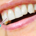 Che cosa sono le macchie nere sui denti?