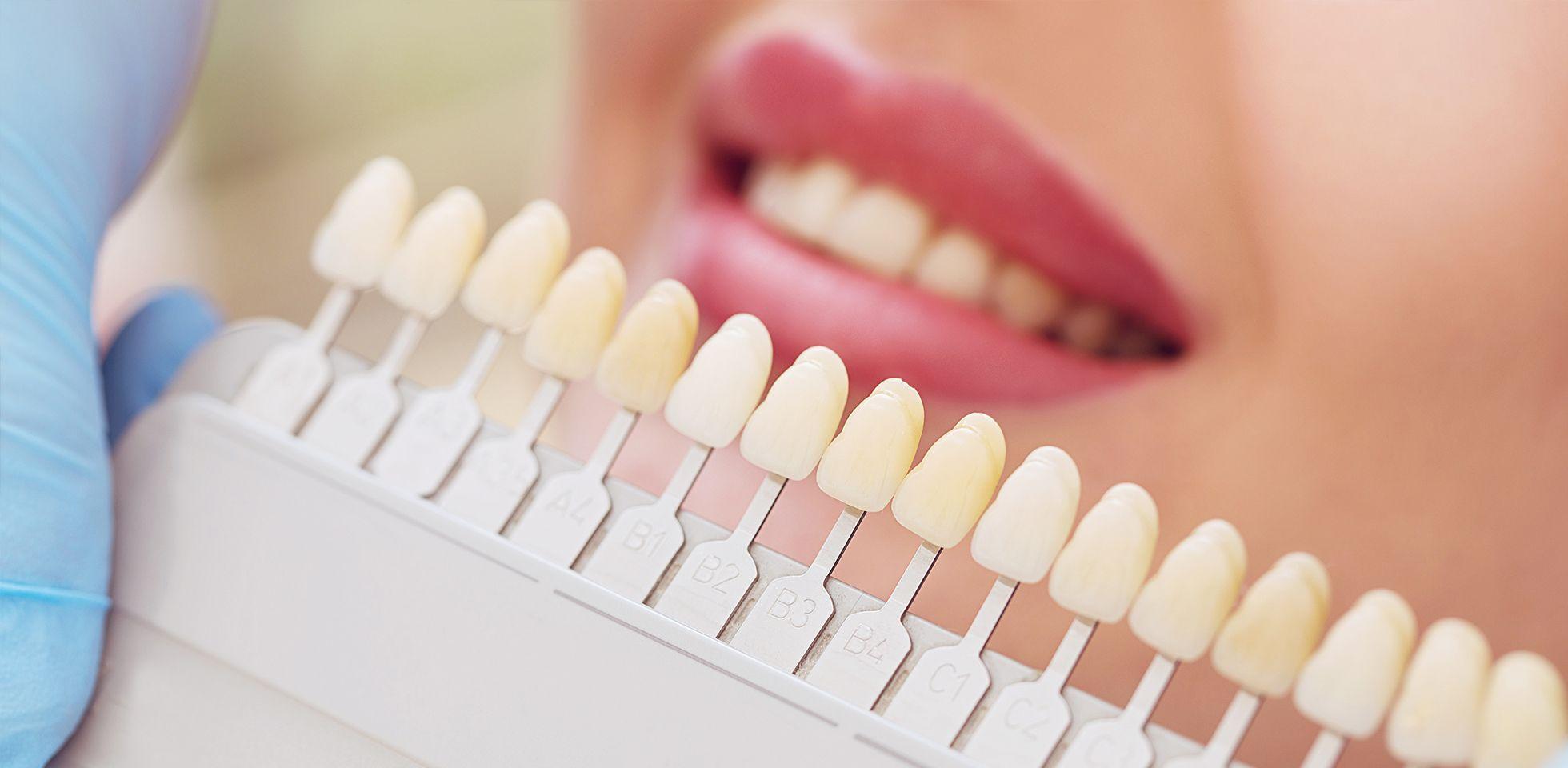 Faccette dentali: vantaggi e costi